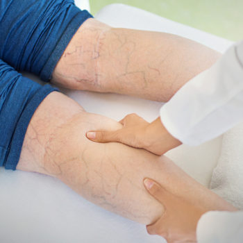 Our Guide To Finding The Right Varicose Vein Clinic For You