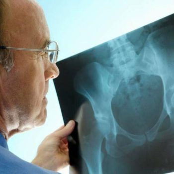Information About An Orthopaedic Surgery